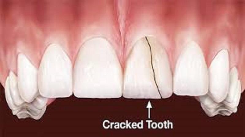gigi retak